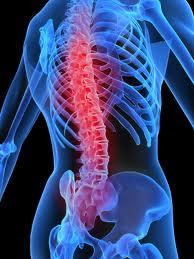 Program profilaktyki zdrowotnej dla osób z dolegliwościami bólowymi kręgosłupa